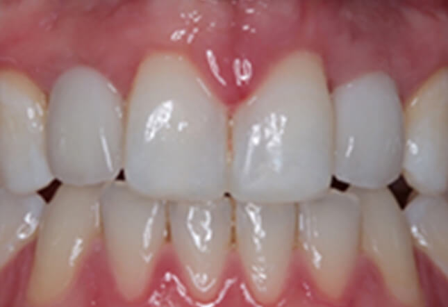 teeth whitening Twenty One dental clinic dentist Brighton Hove