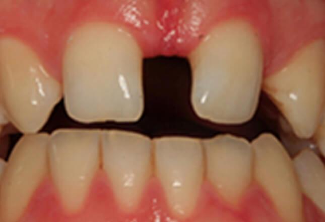 Healthy Smile Twenty One Dental Brighton hove Digital Dental & Implant Clinic