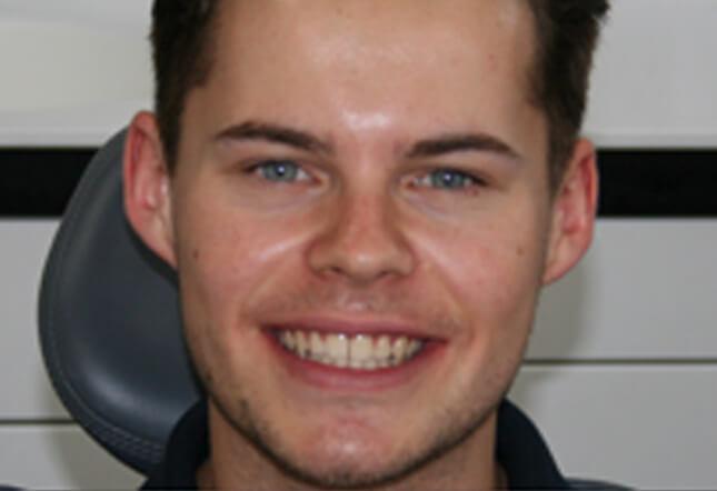 teeth whitening Twenty One Dental Brighton hove Digital Dental & Implant Clinic