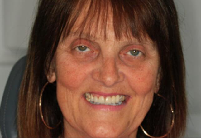 Twenty One Dental Brighton hove Digital Dental & Implant Clinic