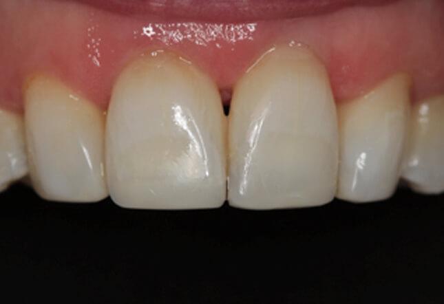 teeth whitening teeth whitening Twenty One dental clinic dentist Brighton Hove
