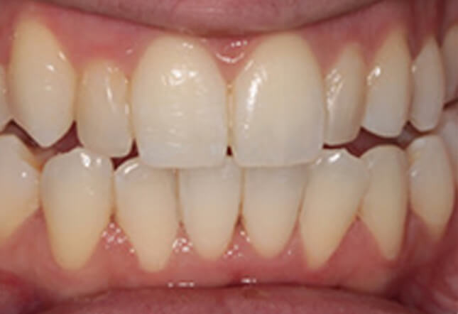 teeth whitening teeth whitening Twenty One dental clinic dentist New Church Road Brighton Hove