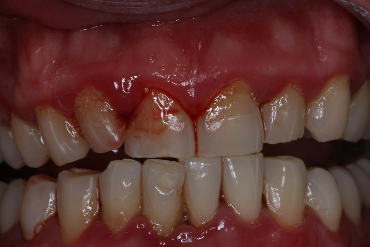 Twenty One dental clinic dentist Brighton Hove