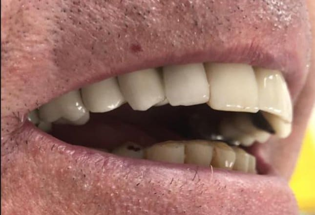 Alaa Aldaadaa Oral Surgeon Twenty One Dental Dentist Brighton Hove
