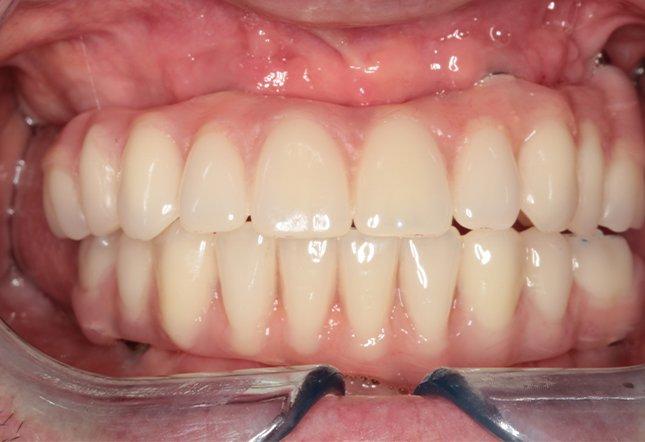 Adyl Asani Twenty One Dental Clinic Dentist Brighton Hove