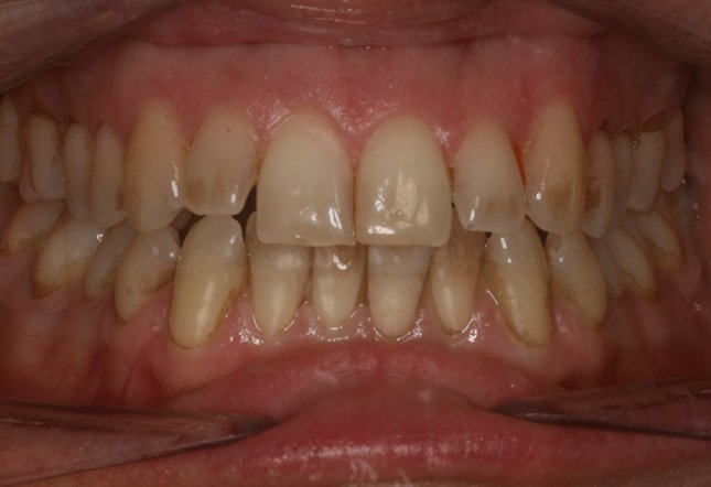 Eamon Dehdashti Twenty One Dental Dentist Brighton Hove